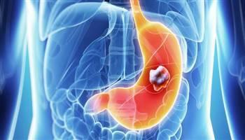 Kanker Lambung : Definisi, Diagnosis & Penatalaksanaan